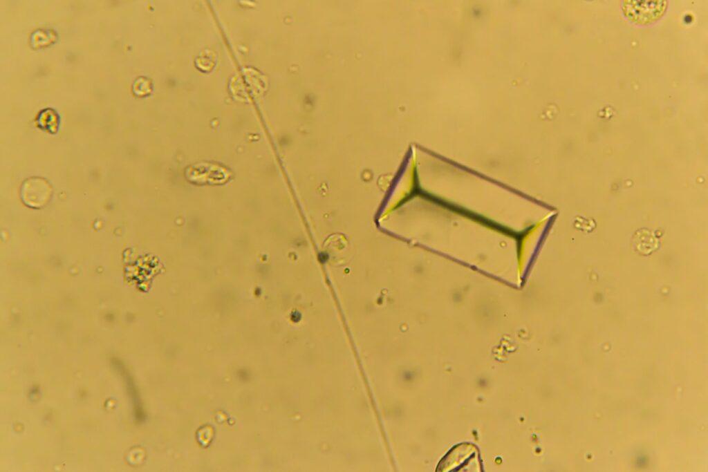 sargdeckelförmigen Struvitkristalle unter Mikroskop